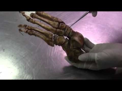PARTE 1 examen oral anatomia - YouTube