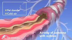 Asthma Medical Animation