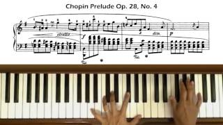 Chopin Prelude Op. 28, No. 4 In E Minor  (with Score)