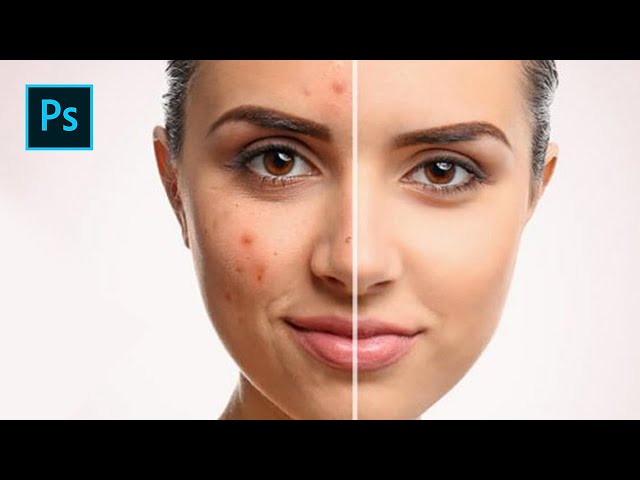 Photoshop Tutorial: How To Remove Pimples Easy