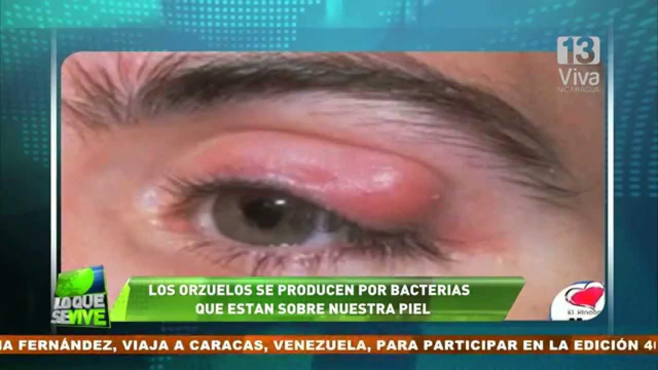 remedio contra orzuelos en los ojos