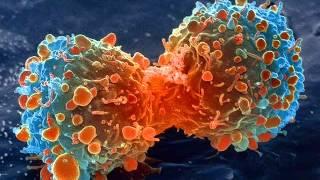 Dr Mohamed El Faid : Le Cancer