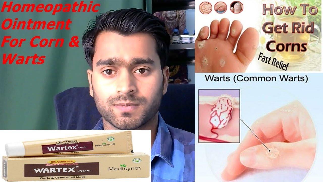 wartex cream#homeopathic cream for warts and corns