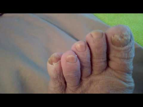 Toe Fungus Healing w/Kangen water Strong Acidic 2.5 pt 1