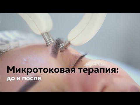 Микротоковая терапия в салоне (До и После процедуры)