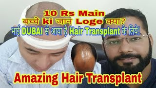 1st Day of Hair Transplant Surgery - Honest & Best Hair Transplant Review by Dubai Patient