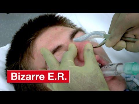 Resetting A Broken Nose - Bizarre ER