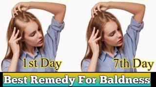 Baldness Natural Remedy | Anti Hair Fall Treatment | Beau-tips Treasure