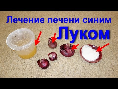 Лечение печени! Как вылечить печень народными средствами. Синий лук для лечения цирроза и гепатоза.