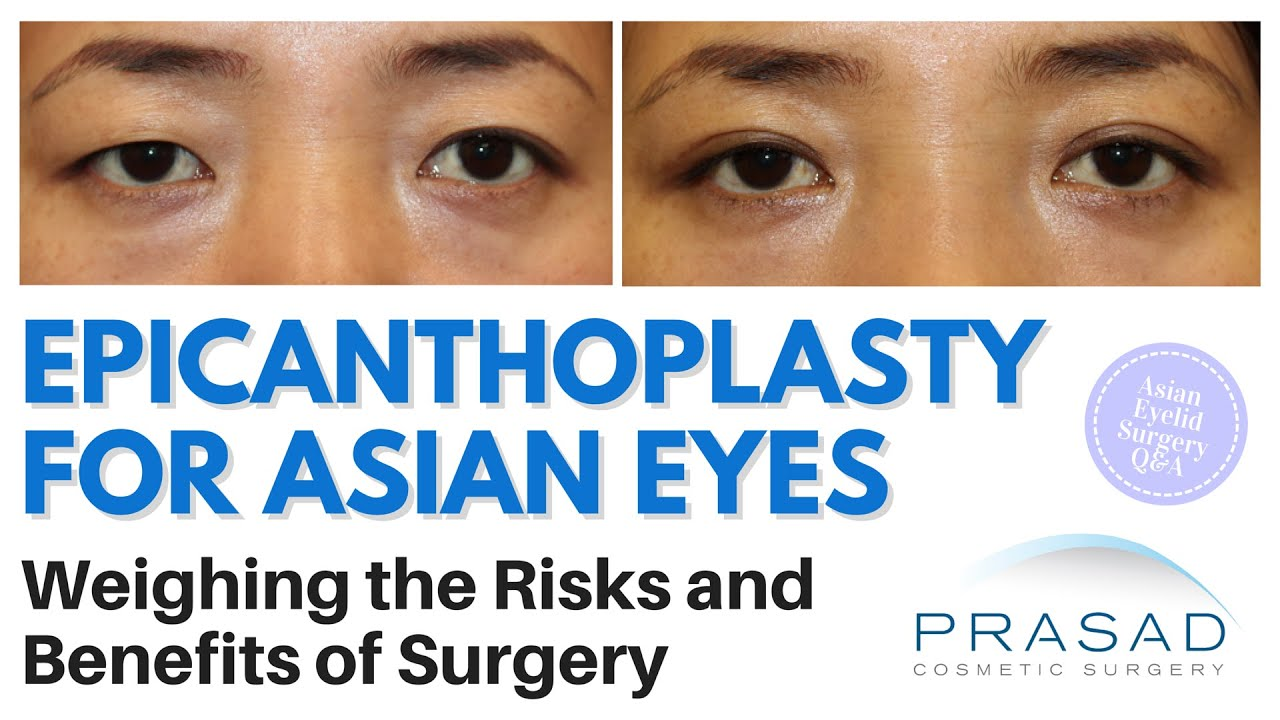 Epicanthoplasty For Asian Eyes - Rischi e benefici di-6089