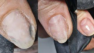 Пустоты под ногтями продолжение истории ногтей с онихолизисом
