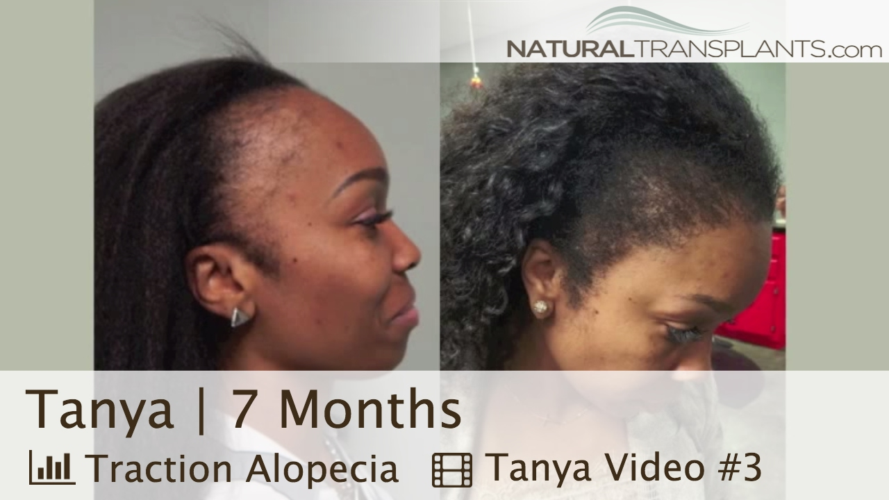 best female hair transplant before and after | hair loss & traction  alopecia in women (tanya)