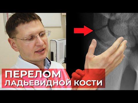 Как лечить, выявить перелом ладьевидной кости? Самая сложная кость в лечении