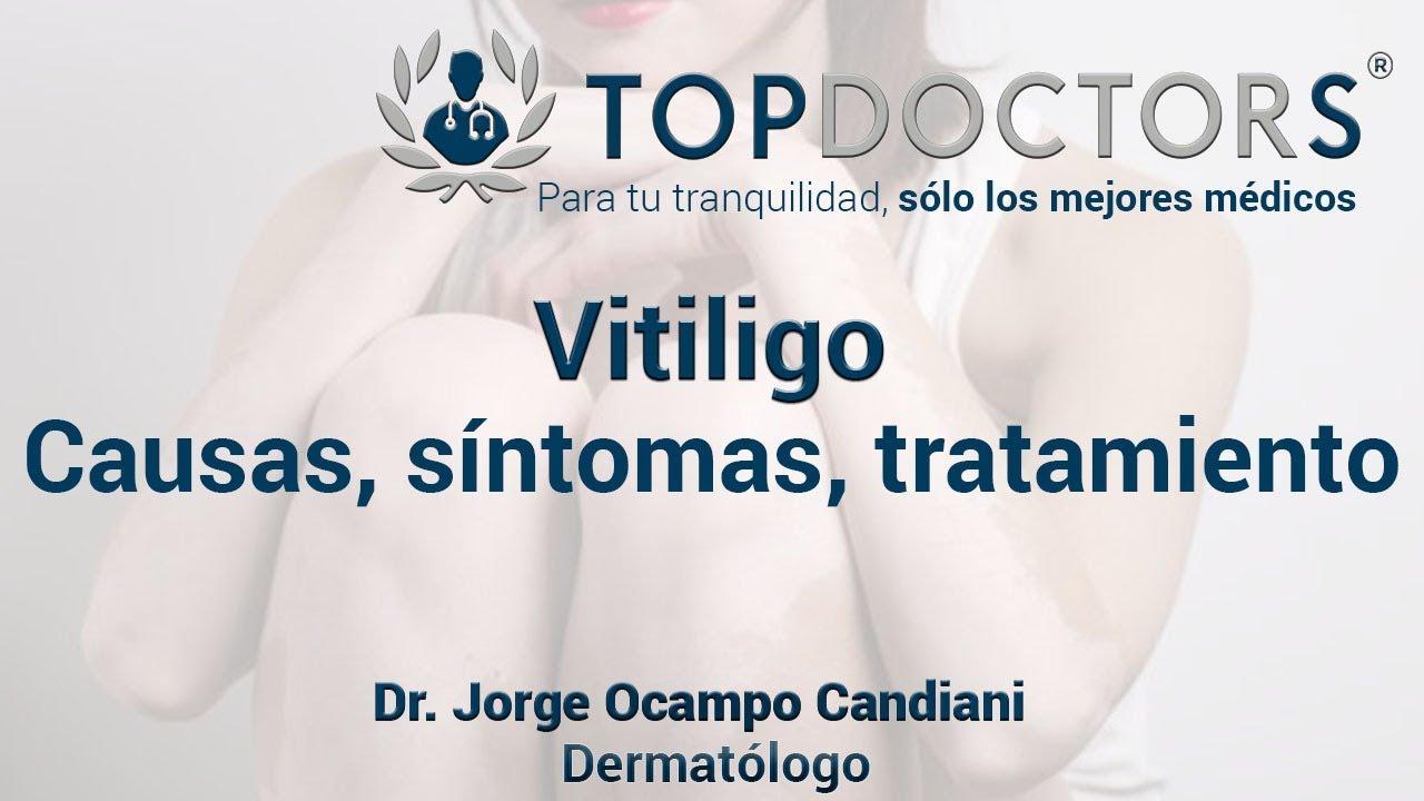 vitiligo causas y sintomas