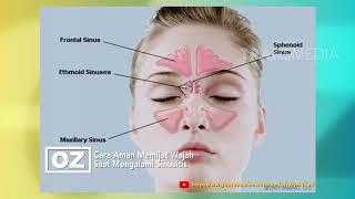 Dr Oz   Cara Mengatasi Sinusitis (3/3/19) Part 1