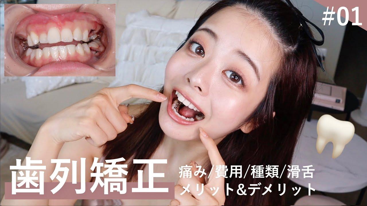 矯正 費用 列 歯