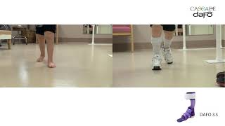 Before & After: Swing phase inconsistency | DAFO 3.5