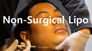 Non-surgical Liposuction | Fat Dissolving Injections in Korea