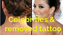 Celebrities removed tattoos - before and after