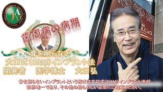 歯周病の病期 岐阜 愛知 名古屋 インプラント thumbnail