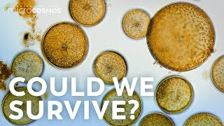 What If All the Microbes Disappeared?