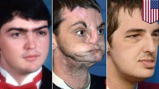 亡くなった男性の「顔」を、事故で顔を失った男性に移植する珍しい手術...