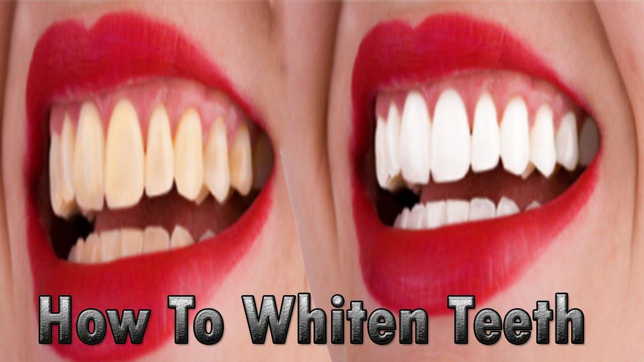 How To Whiten Teeth Hindi Urdu Youtube