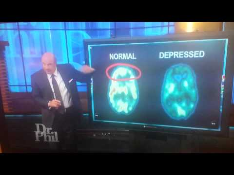 Normal Brain VS Depressed Brain