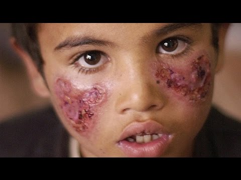 ISIS Spreading Flesh-Eating Disease