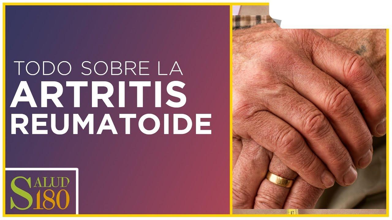artritis reumatoide diagnóstico diferencial emedicina diabetes