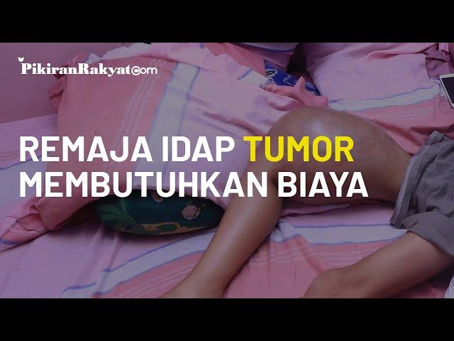 Mengidap Tumor, Remaja di Ciwidey Bandung Tidak Punya Biaya untuk Amputasi Kaki Kanannya