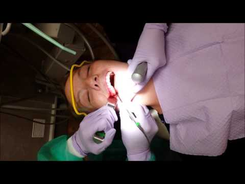 Understanding IV Conscious Sedation