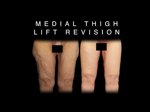 Medial Thigh Lift Revision