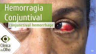 Remédio sangue para coágulo perto de os olhos de
