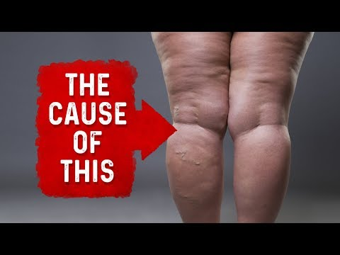 the-eight-causes-of-edema