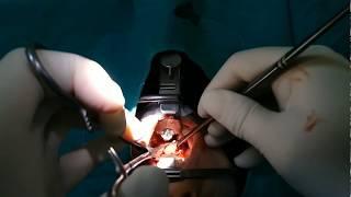 Adenotonsillectomy video- Genizeti+Bademcik alınması ameliyat videosu
