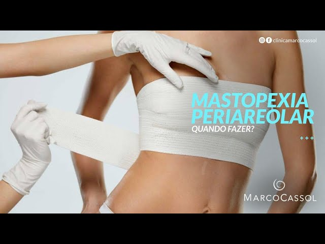 Mastopexia Periareolar, quando é indicada?