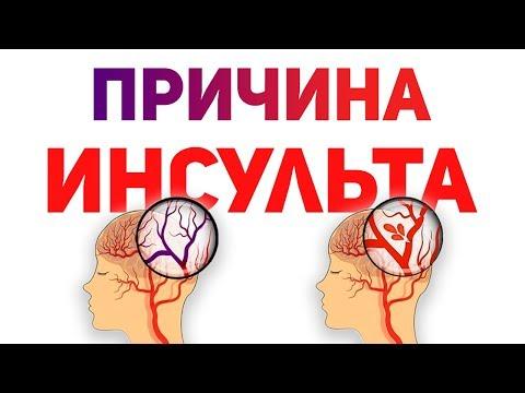 Инсульт головного мозга: симптомы, последствия - полная