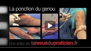 La ponction articulaire du genou