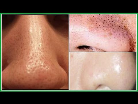 THE BEST 3 EFFECTIVE TREATMENTS TO GET RID OF LARGE PORES ... - photo#42