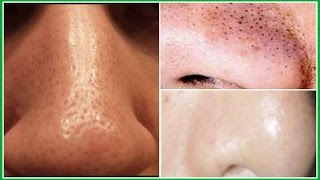 THE BEST 3 EFFECTIVE TREATMENTS TO GET RID OF LARGE PORES, SMOOTH SKIN IN 7 DAYS |Khichi Beauty