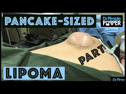 Thumbnail: Part 1: A Pancake-Sized Lipoma on the Back with Dr Pimple Popper