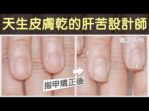 亞瑟認真搞笑介紹:天生皮膚乾又咬指甲~設計師的71週矯正,處理 甲床外露、指肉外露、指甲太短的困擾。