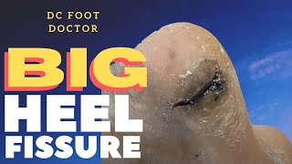Big Heel Fissure: A Deep Crack in the Heel