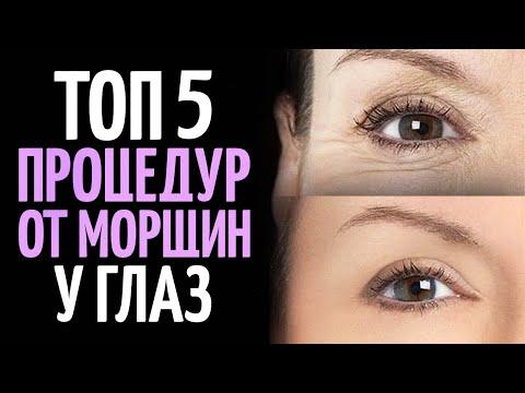 Как избавиться от морщин вокруг глаз? ТОП 5 процедур.