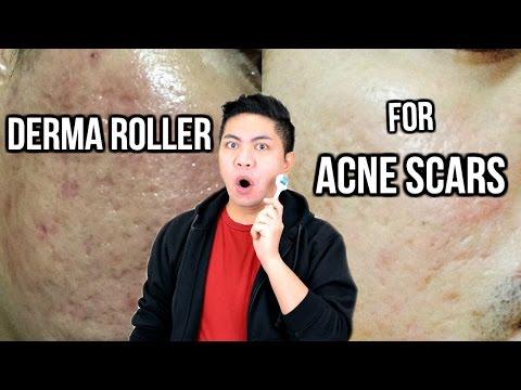 Derma Roller for Acne Scars