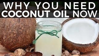 Virgin Coconut Oil - 10 Amazing Benefits