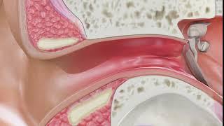 Otitis media adalah infeksi yang terjadi pada telinga bagian tengah. Kenali gejalanya dan cegah terj.