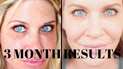 THIS IS WORKING!! Obagi Nu-Derm 3(ish) month UPDATE!  Clear your skin, remove pigment, look younger!