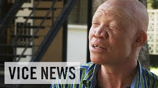 Albino Activism in Tanzania: VICE News Meets Josephat Torner